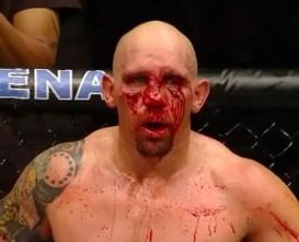 shane-carwin-bloody-face